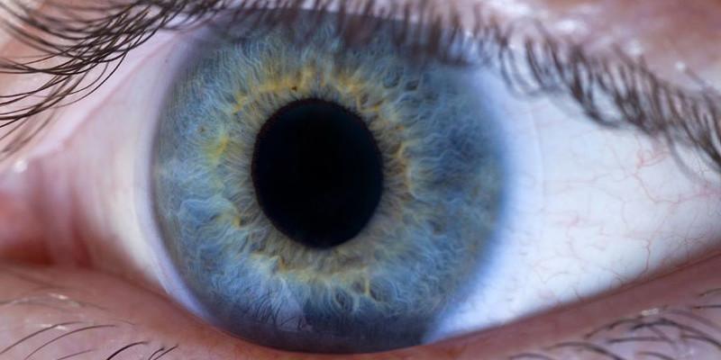 Auge Iris Grauer Star Grüner Star Behandlungsfehler