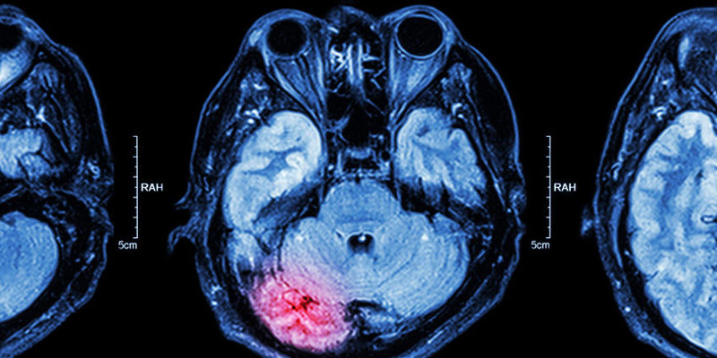 Gehirntumor Behandlungsfehler