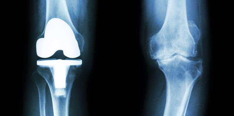 Knie TEP kuenstliches Knie Behandlungsfehler