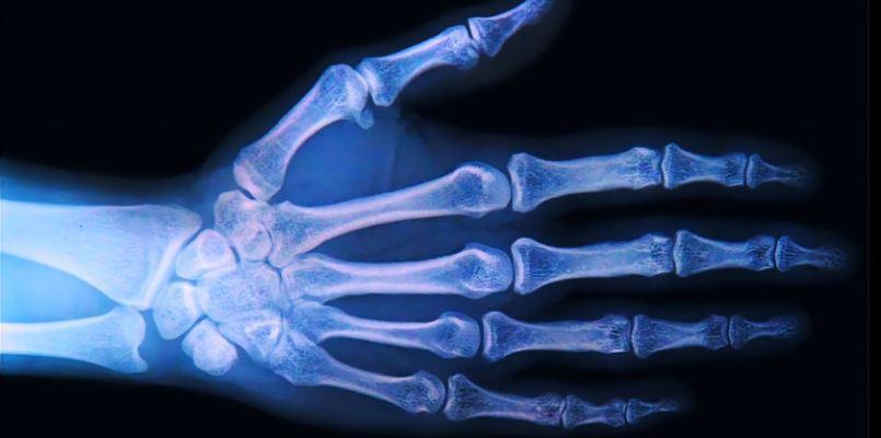 Handgelenkfraktur, Handgelenkbruch, distale Radiusfraktur