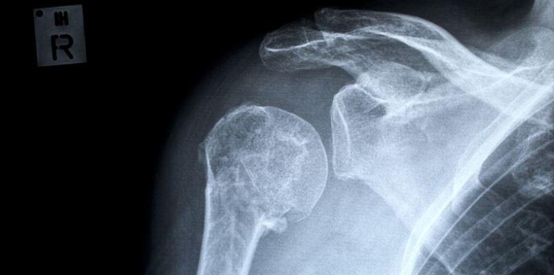 ausgerenkte Schulter, Verrenkung, Schulterverletzung
