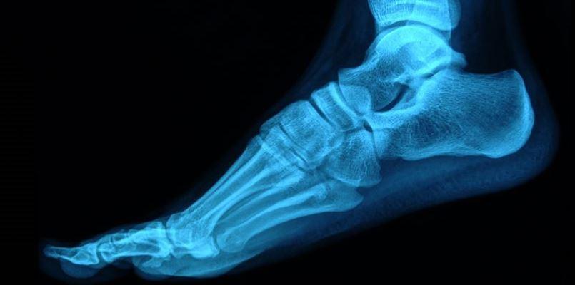 Fußgelenk, Sprunggelenk, Sprunggelenkfraktur, Sprunggelenkbruch, Fußgelenkfraktur, Fußgelenkbruch, Wadenbein, Sprungbein, Schienbein